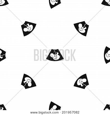 Ultrasound fetus pattern repeat seamless in black color for any design. Vector geometric illustration