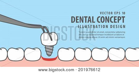 Banner Implant Tooth Install Illustration Vector On Blue Background. Dental Concept.
