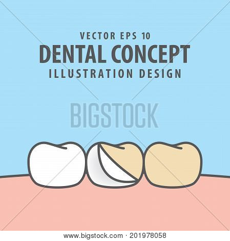 Enamel Tooth And Whitening Illustration Vector On Blue Background. Dental Concept.