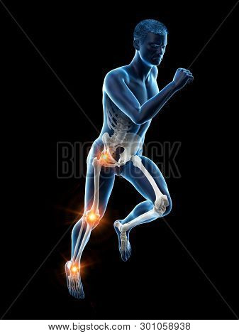 3d rendered medically accurate illustration of a runners painful joints