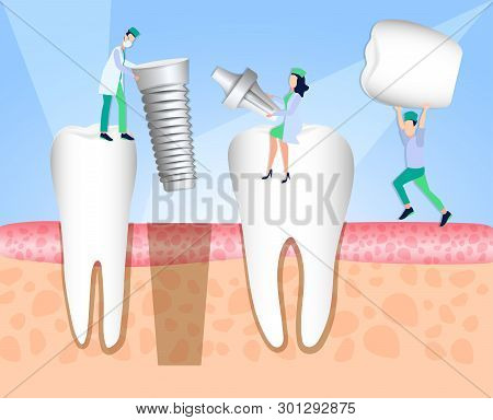 Dentists Install A Dental Implant. Dentistry. Implantation And Treatment Of Human Teeth. Vector Illu