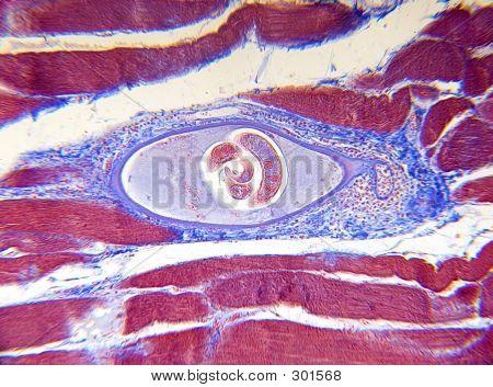 Microscope - Trichinella
