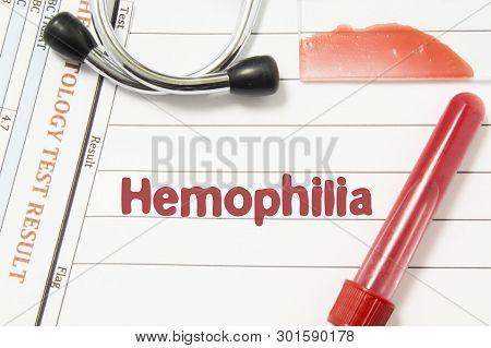 Diagnosis Of Hemophilia. Laboratory Blood Bottle (vacutainer), Glass Slide With Blood Smear, Hematol