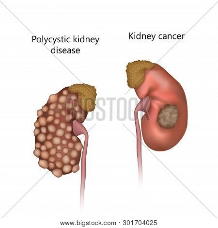 Polycystic Kidney Disease, Comparison With Cancer. Tumor, With Cysts. Realistic Anatomy Vector Illus
