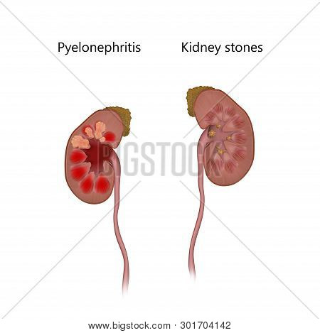 Pyelonephritis Comparison With Kidney Stones. Infection, Infected. Realistic Anatomy Vector Illustra