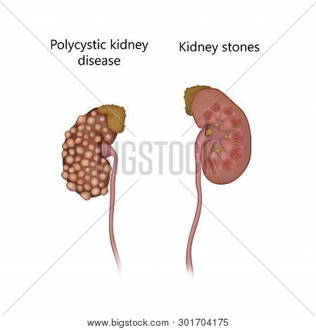 Polycystic Disease, Comparison With Kidney Stones. With Cysts. Realistic Anatomy Vector Illustration