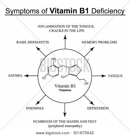 Symptoms Of Vitamin B1 Deficiency. Infographics. Vector Illustration On An Isolated Background.