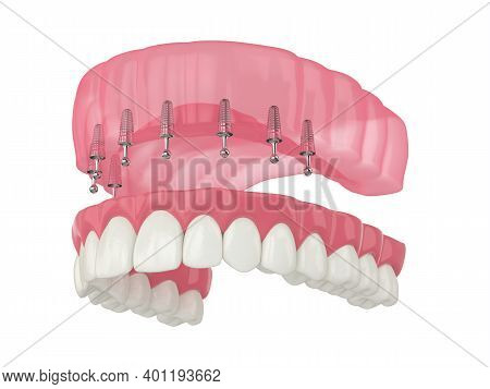 3D Render Of Removable Snap-on Full Implant Denture Installation