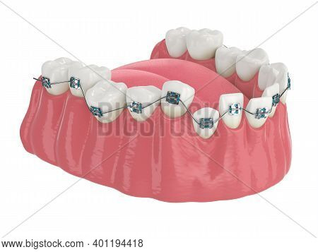 Teeth Alignment By Orthodontic Braces Isolated Over White Background