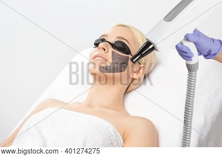 A Woman With A Carbon Mask On Her Face, A Beautician Does Laser Carbon Peeling On The Problem Areas