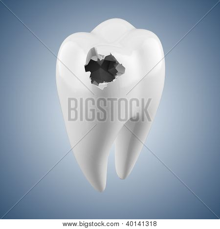Hhuman tooth with caries