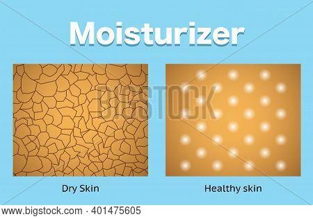 Moisturizer, Dry Skin And Healthy Skin, Vector Design.