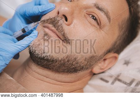 Cropped Close Up Of Handsome Happy Mature Man Receiving Face Filler Injections At Beauty Clinic. Bea