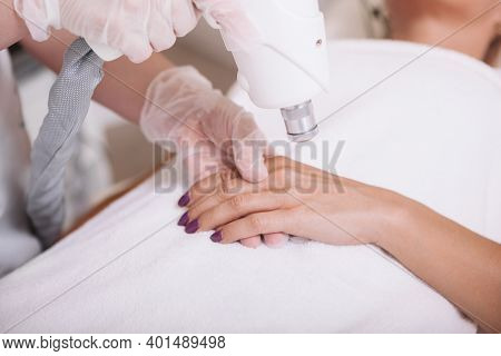 Cropped Close Up Of A Mature Woman Getting Skin Pigmentation Removed On Her Hands, Dermatologist Usi