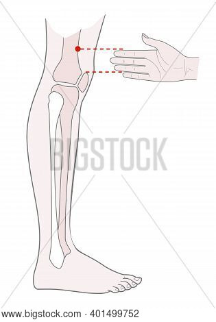 Active Acupuncture Points On The Legs:  Above The Knee.