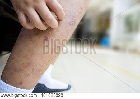 Little Asian Boy Has Allergies With Mosquitoes Bite And Itching Her Leg.mosquito Sucking Blood On Ch