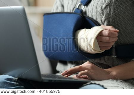 Close Up Of A Disabled Woman Hands Using Laptop With A Broken Arm In A Sling On A Couch At Home