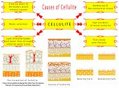 The Formation of Cellulite (Toxic Accumulation, Enlarged Fat Cells, Poor Circulation, Fibrosis of Connecting Tissue, Water Retention).  Causes of Cellulite. Male Fat Cells. Female Fat Cells poster