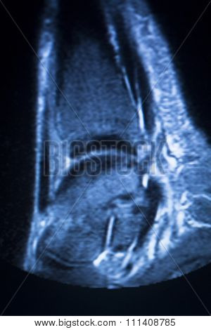 Mri Magnetic Resonance Imaging Ankle Scan