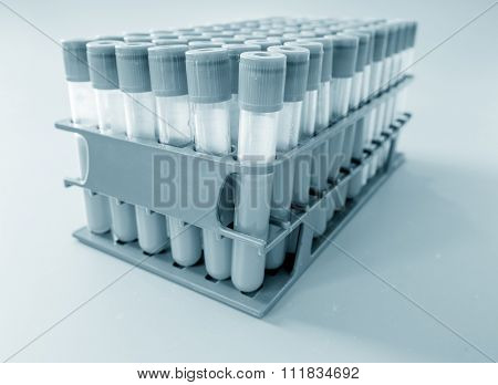 test tubes with blood on a tray