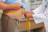 Doctor measuring obese man waist body fat. Obesity and weight loss. poster