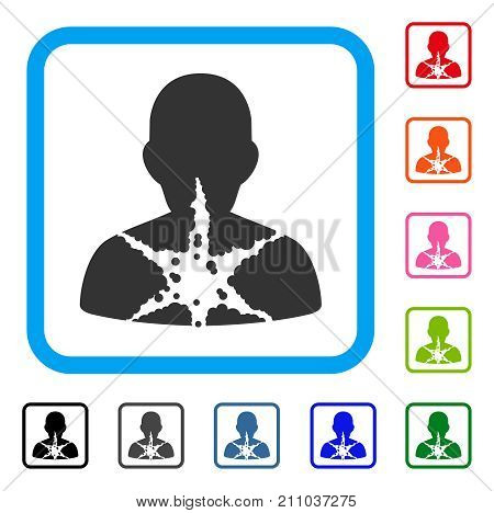 Cancer Damaged Patient icon. Flat grey pictogram symbol inside a light blue rounded rectangular frame. Black, gray, green, blue, red, orange color variants of Cancer Damaged Patient vector.