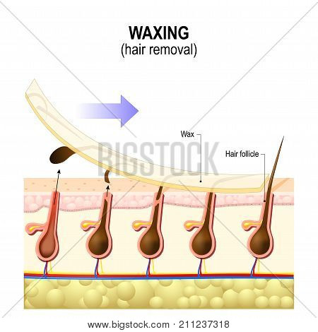 Hair removal. Waxing is a form of semi-permanent hair removal which removes the hair. Structure of the human skin
