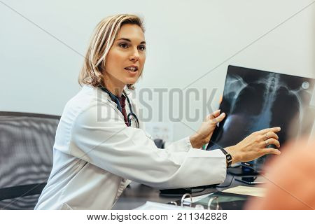 Female doctor showing diagnosis of x-ray image to patient sitting at clinic. Healthcare professional discussing health condition with patient using medical scan.