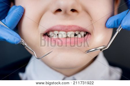 Kid Showing Teeth At Dental Check Up. Close-up Of Dentist's Hand With Dental Tools - Probe And Mirro