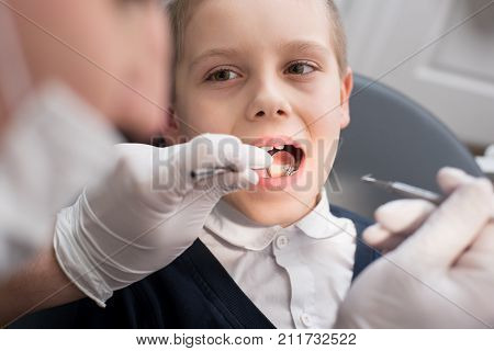 Close-up Dentist Examining Teeth Of Boy Patient In Dental Clinic Using Dental Tools - Probe And Mirr