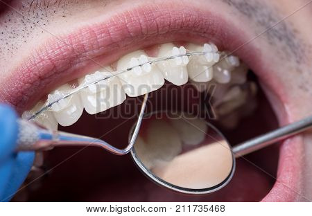 Dentist Checking Up Teeth With Ceramic Brackets Using Dental Tools - Probe And Mirror At The Dental