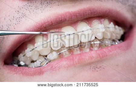 Dentist Checking Up Teeth With Ceramic Brackets Using Probe At The Dental Office. Macro Shot Of Teet