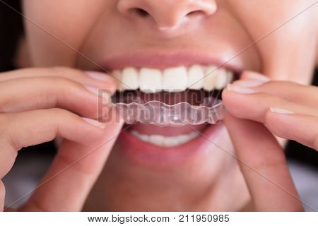 Close-up Of Woman's Hand Putting Transparent Aligner In Teeth