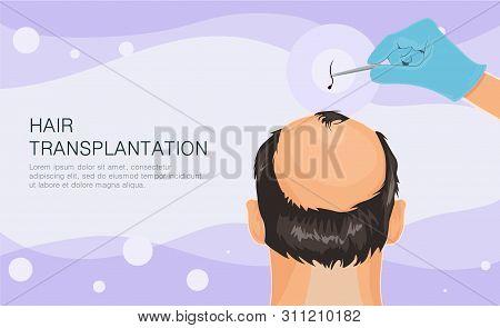 Hair Loss. Stages Of Alopecia Man Problem Vector Medical Health Illustration Hair Transplant Illustr