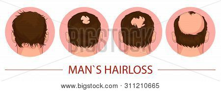 Hair Loss. Stages Of Alopecia Process Man Problem Vector Medical Health Illustration