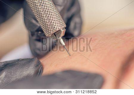 Needle Wrinkle Treatment. Needle Mesotherapy Single Needle Clopse Up.