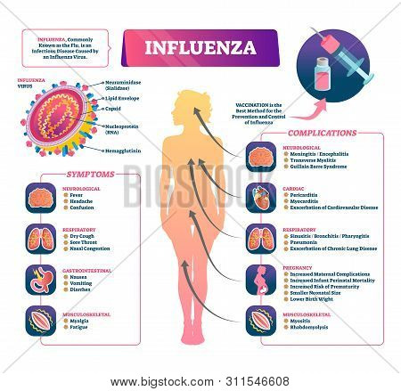 Influenza Vector Illustration. Labeled Flu Symptoms, Prevention And Complication Scheme. Diagram Wit