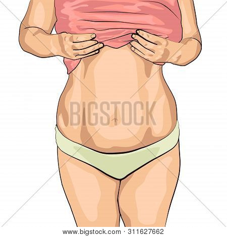 Fat Women Has Overweight. She Shows Excess Fat Of The Abdomen. Isolated On White Background. She Wan