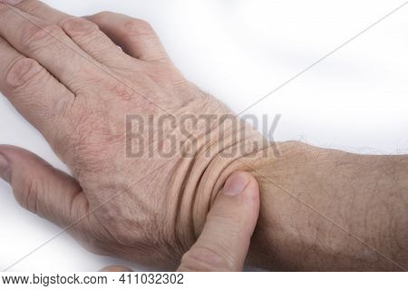 Hand 60 Years Old Man With A Wrinkled Skin On A White