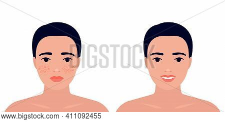 Woman Before And After Acne On Skin Face Treatment. Inflamation Skin, Spot And Pimple. Dermatology,