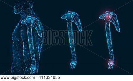 Human Anatomical Model. Pain, Injury And Inflammation Of The Shoulder And Elbow Joints Side View Pol