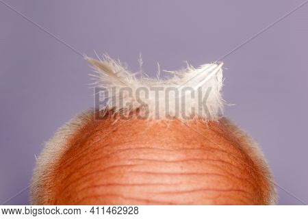 Male Haircare. Aging Old. Bald Man Head. Senior Baldness Male. Hair Loss And Health Problems Concept