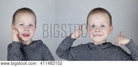 Before And After. The Child Shows A Face With A Lot Of Red Allergic Acne. The Second Picture Shows A