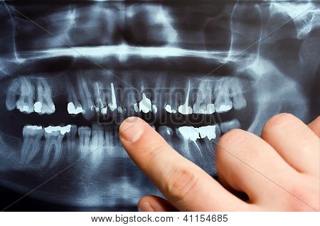 Hand Showing Dental X-ray