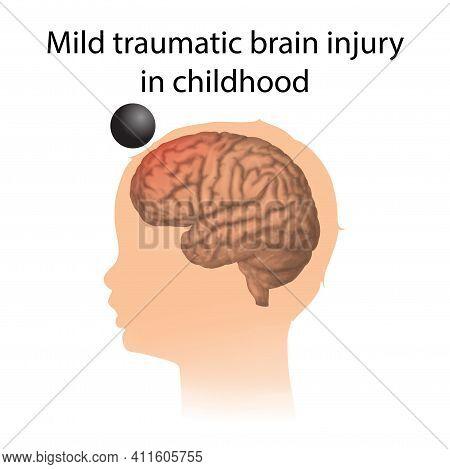 Tbi. Mild Traumatic Brain Injury In Childhood. Kid, Child Head Damage.
