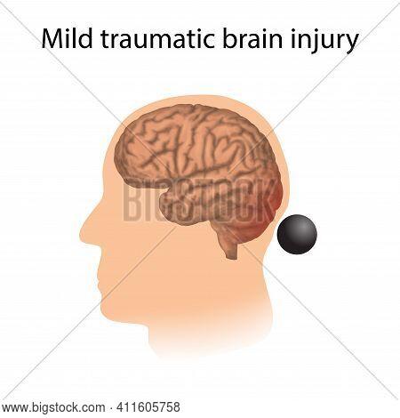 Tbi. Mild Traumatic Brain Injury. Head Damage.