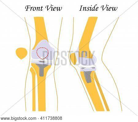Knee Replacement. Joint Prosthetics. Knee Endoprosthesis. Vector Illustration. Flat Design
