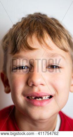 Portrait Of A Boy With Bad Teeth, Fallen Front Upper Teeth