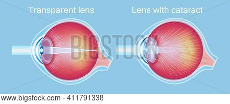 Cataract Eyes Icon Vector. Cataracts And Healthy Eye Detailed Structure
