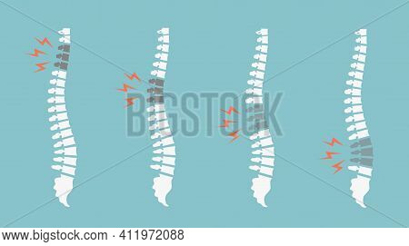 Backache Spines Set. Back Pain Vector Icon Illustration Isolated. Damaged Disks